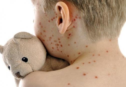 Vaccinarsi contro il morbillo è un obbligo
